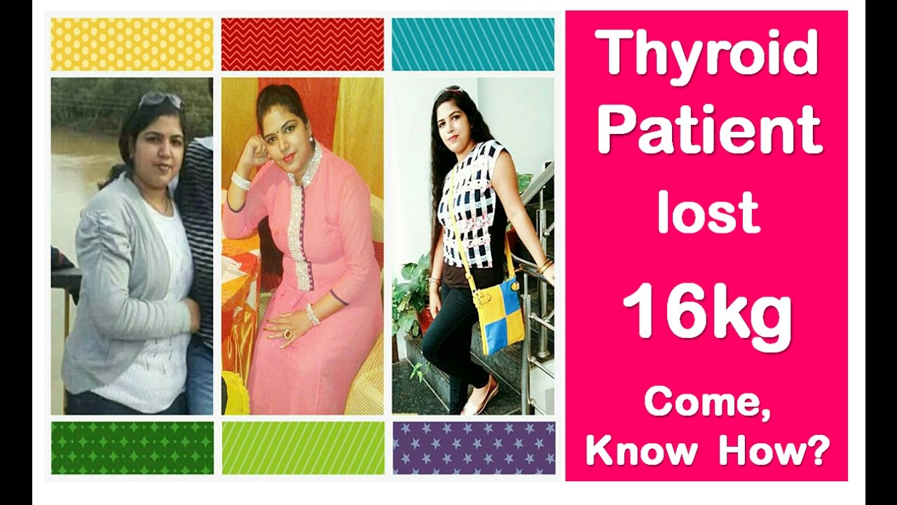 Thyroid Patient Lost 16 Kg Come Know How No Diet No Exercise Weightloss Story Review Dr Shalini